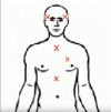 Screenshot_2018-10-30 L'hydrotomie percutanée à visée thérapeutique - YouTube.png